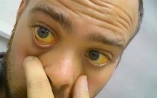 Опасность холестатической желтухи и способы лечения болезни