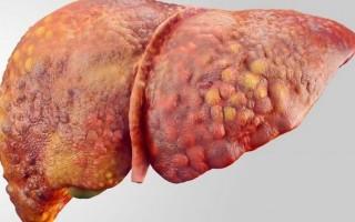 Причины и симптомы поликистоза печени, методы лечения болезни