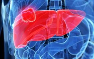 Опасность абсцесса печени и способы лечения заболевания