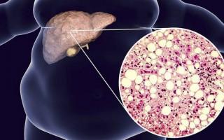 Особенности неалкогольной жировой болезни печени