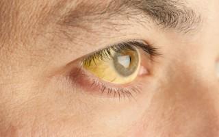 Что такое синдром Жильбера, симптомы и причины появления болезни