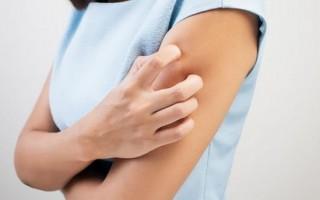 Как избавиться от зуда кожи тела при заболеваниях печени