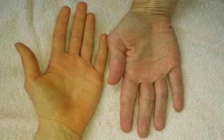 Симптомокомплекс желтуха: как передается и чем вызывается