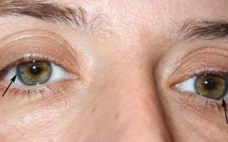 Болезнь Вильсона-Коновалова: клиническая картина и особенности лечения