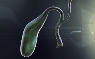Почему болит желчный пузырь: механизмы, запускающие болезни органа