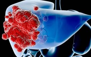 Как распознать и как лечить капиллярную гемангиому печени