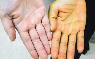 Опасность и способы лечения гемолитической желтухи