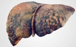 Виды осложнений цирроза печени
