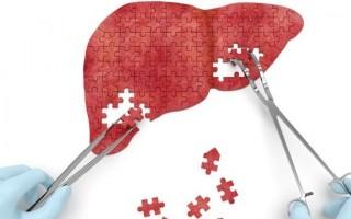 Причины, симптомы и методы лечения синдрома цитолиза