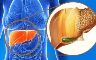 Что такое стеатоз печени, и какими препаратами лечить это заболевание