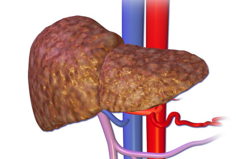 Воспаление печени: причины, симптомы и лечение