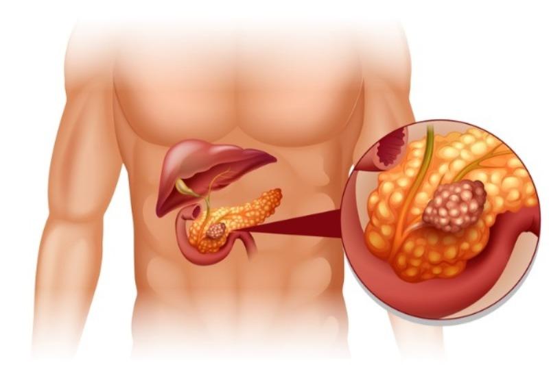 Диффузные структурные изменения печени и поджелудочной железы