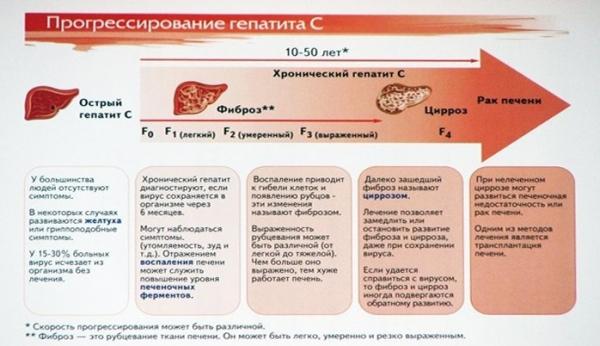 Продолжительность жизни зараженных гепатитом с