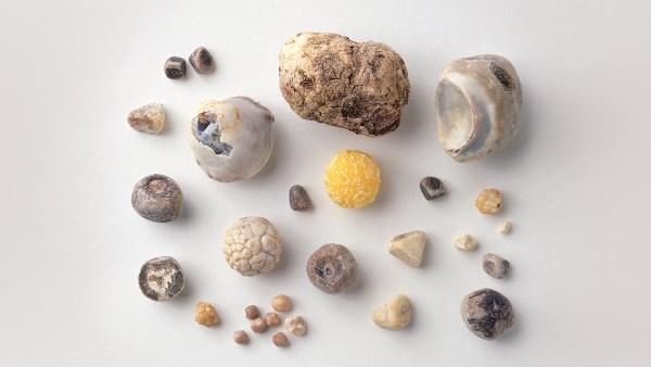 Почему образуются камни в желчном пузыре