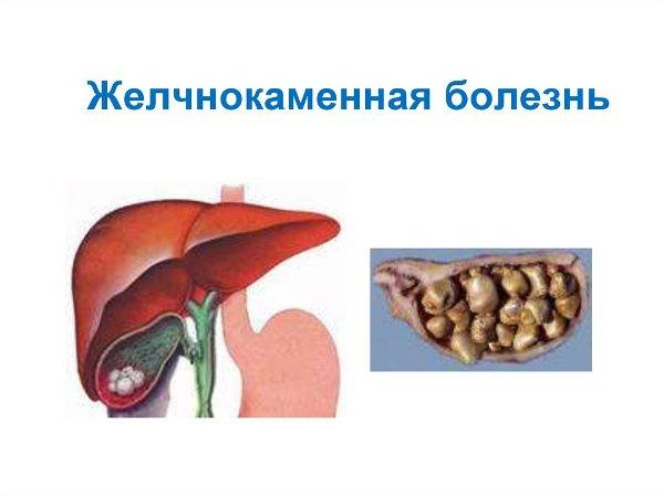 Печеночная колика препараты
