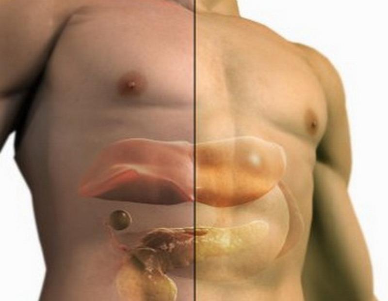 Жировая дистрофия печени лечение народными средств