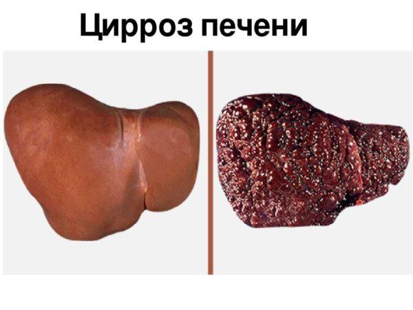 Цирроз у девушек фото