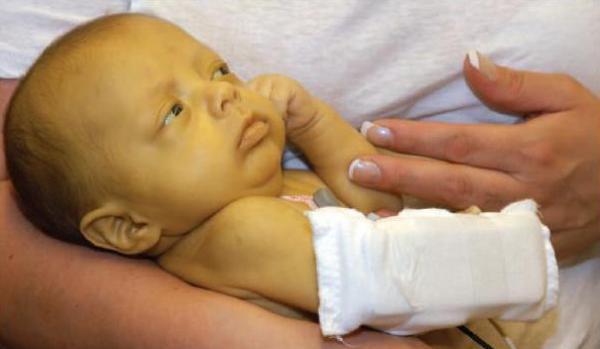 Показатели билирубина у новорожденного