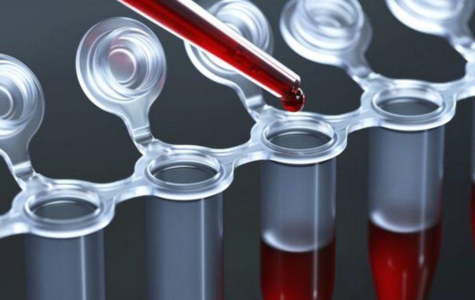 Показатель АСТ очень важен в биохимическом анализе крови ребенка.