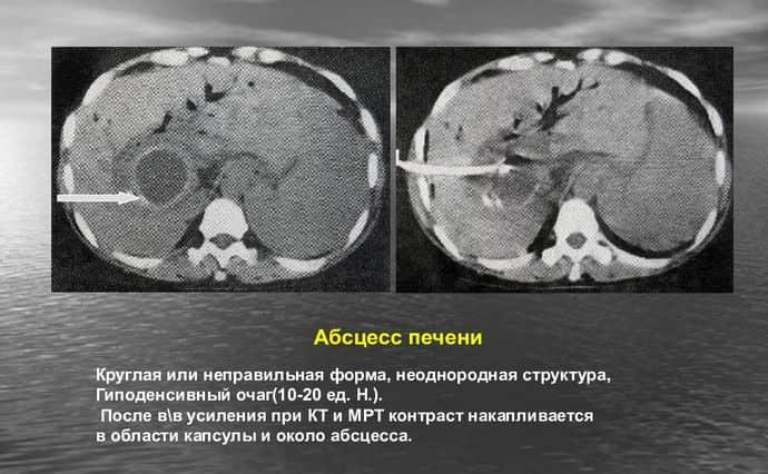 Для диагностики печеночного абсцесса используются разные методы.