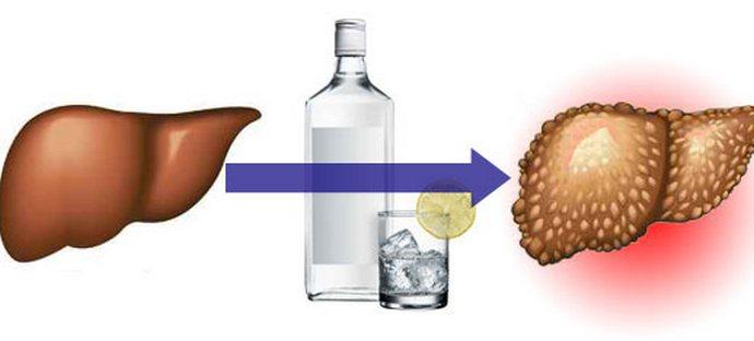 Как известно, систематическое употребление алкоголя пагубно влияет на печень.