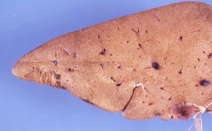 Печень при такой болезни повреждается практически непоправимо.
