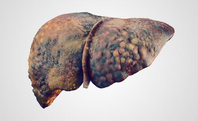 на поздних стадиях заболевания печень восстановить уже невозможно.