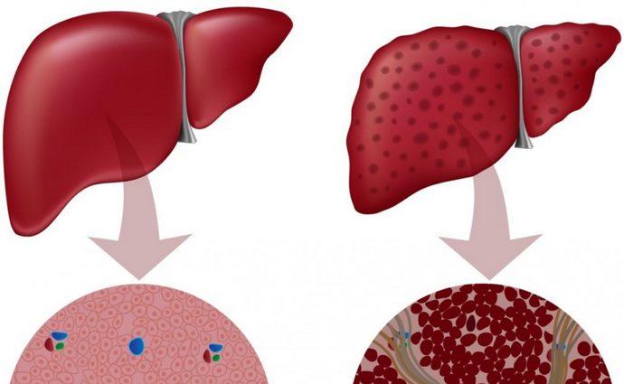 При алкогольном гепатозе клетки печени перерождаются в соединительную ткань и жировые клетки.