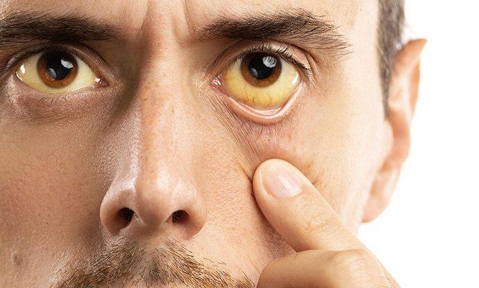Синдром Жильбера это по сути наследственная желтуха.
