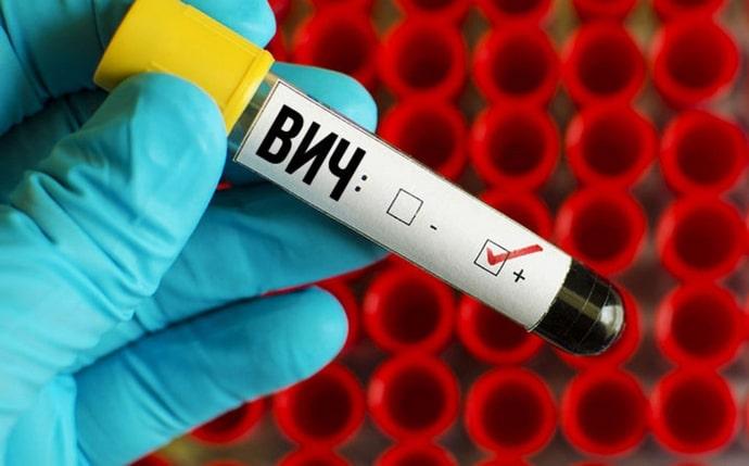 Анализ на гепатит и вич показан, к примеру, беременным женщинам.