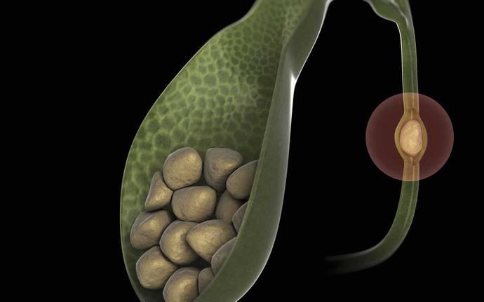 Одной из самых частых причин боли в печени при беременности является холецистит.