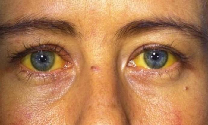 При подходящих для болезни обстоятельствах синдром Жильбера может внезапно проявиться.