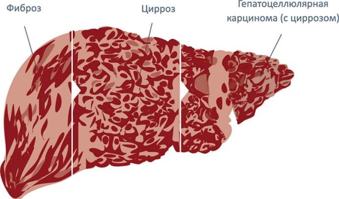 Фиброз печени 4 степени при гепатите С это ситуация, когда прогноз практически невозможно назвать благоприятным.