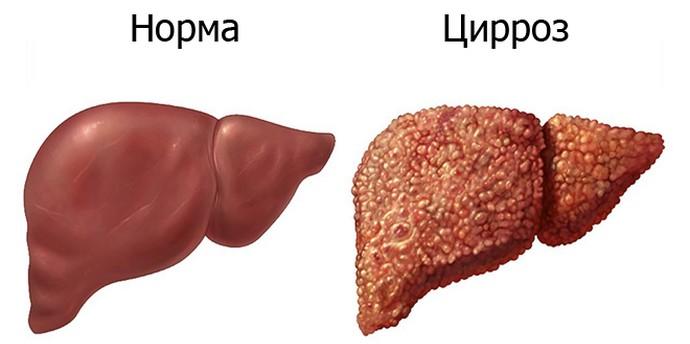 Фиброз без лечения быстро переходит в цирроз.