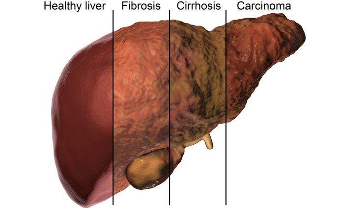 При интоксикации печени гепатоциты начинают погибать.