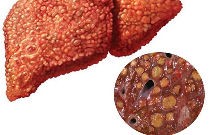 Жировой гепатоз это только один из примеров того, как диабет влияет на печень.