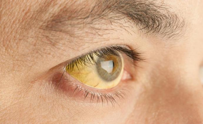 Одним из самых распространенных симптомов желтухи является пожелтения склер.