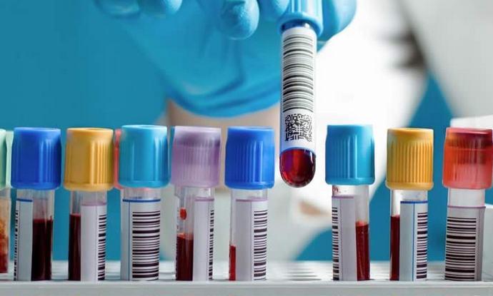 Для диагностики гепатита сдают специальный ПЦР-тест.