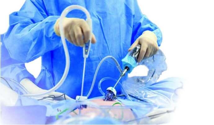 Сейчас часто проводится лапароскопия на печени.