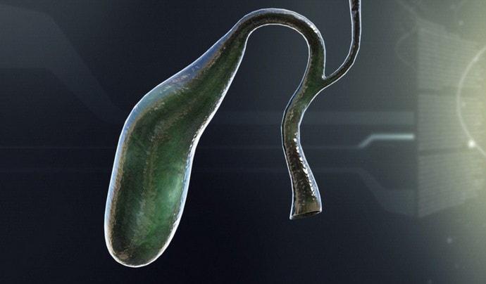 Отключенный желчный пузырь это явление, при котором орган по сути не работает.