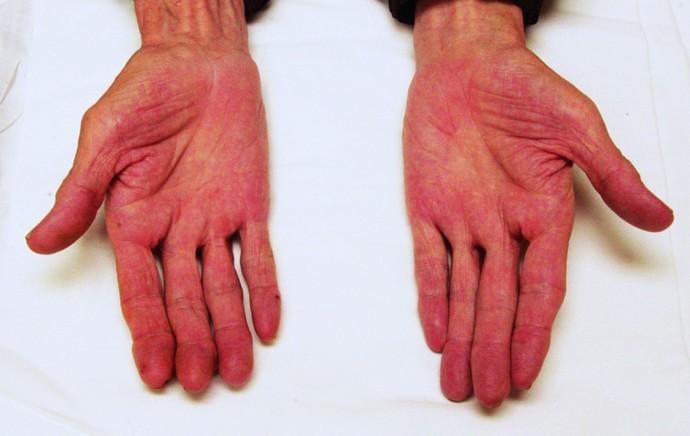 печеночные ладони это состояние, при котором сильно краснеет кожа на ладонях.