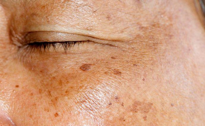 Печеночные пятна на коже нередко сигнализируют о наличии проблем с внутренними органами.