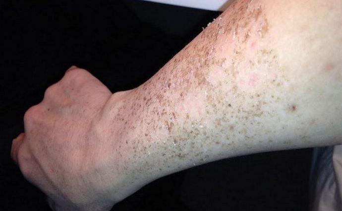 Порой такие пятна на коже выглядят очень неприятно.
