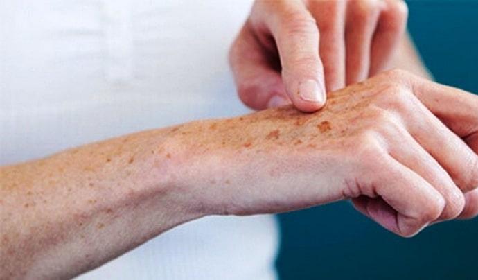Высококвалифицированный специалист при жалобах пациента на пятна на коже наверняка назначит дополнительные анализы и обследования, чтобы выявить первопричину такого симптома.