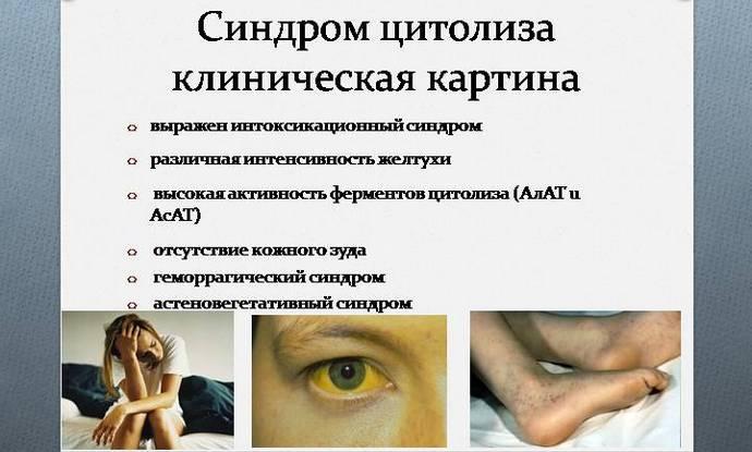Симптомы синдрома цитолиза достаточно размытые.