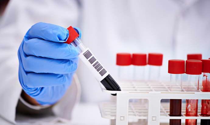 Анализ крови что такое алт и аст