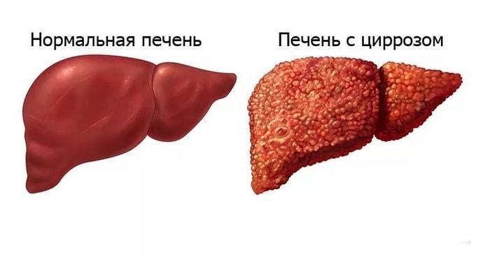 изменение печени при циррозе