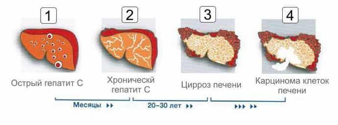 негативные последствия печени при гепатите С