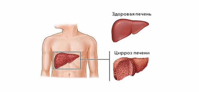 как происходит диагностика цирроза печени