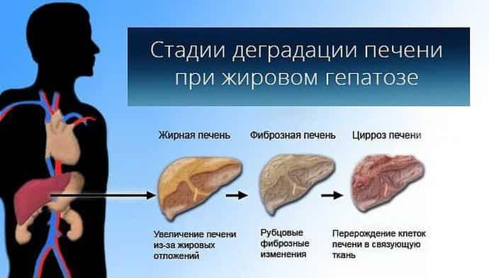 Обнаружение при диагностических исследованиях гепатомегалии